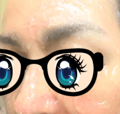 鼻や頬などが赤く