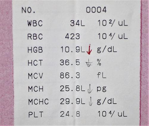 血液検査のデータ